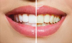 woman before and after smile for smile gallery